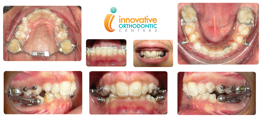 Herbst with Invisalign example before